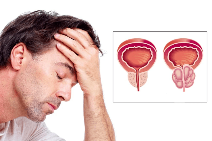 a prostate gland is healthy and inflamed in men