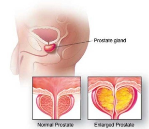 Normal inflammation of the prostate
